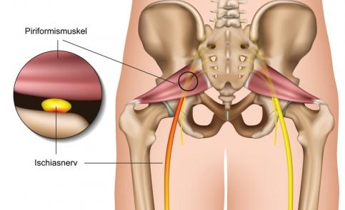 Zespół mięśnia gruszkowatego